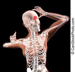 Female medical skeleton with migraine