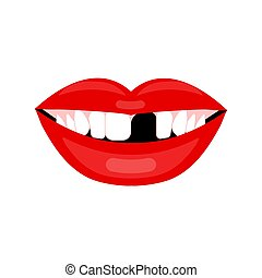 Female mouth with lost tooth. Vector illustration of...