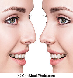 Female nose before and after cosmetic surgery - Female face ...
