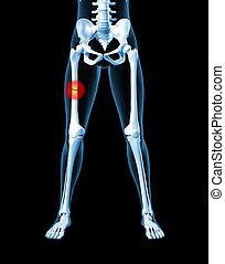 Female skeleton with broken leg bone
