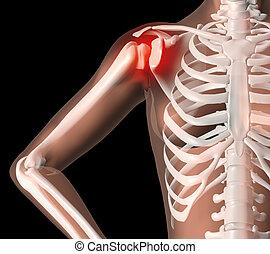 Female skeleton with shoulder pain