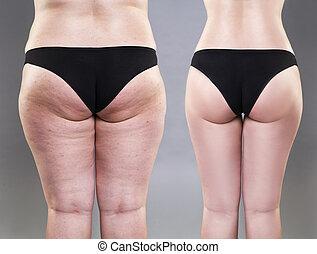 femininas, conceito, obesidade, excesso de peso, pernas,...