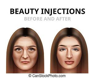 femme, avoir, beauté, injection, facial