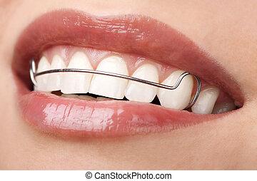 femme, beau, correction, serviteur, orthodontique, dents