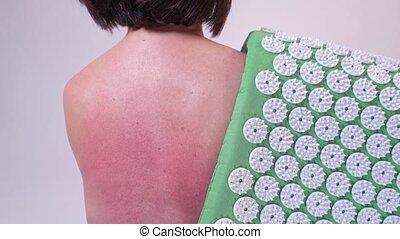 femme, douleur, close-up., acupuncture, deux âges, rug., elle, poinçons, rouges, massage dorsal, dos