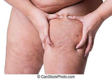 femme, excès poids, graisse, cuisses, femme, obésité, jambes