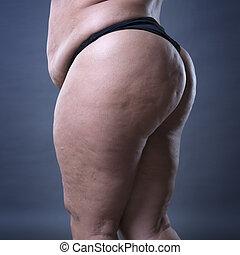 femme, fesses, hanches, tissu adipeux, cellulite, gras