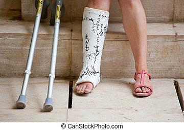 femme, jambe, plâtre