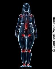 femme obèse, -, douloureux, joints