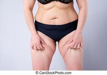 femme, obésité, excès poids, jambes, cuisses, graisse, femme