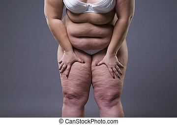 femme, obésité, excès poids, jambes, graisse, corps femme