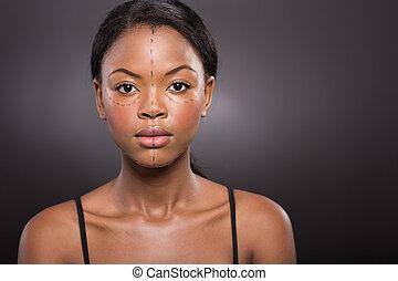 femme, plastique, américain, africaine, chirurgie, avant