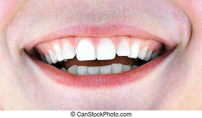 femme saine, dents