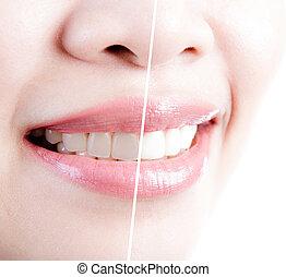femme, sur, après, whitening., fond, dents, blanc, avant