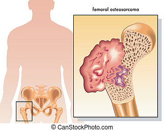 femoral osteosarcoma - medical illustration of the symptoms...