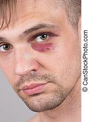 ferito, eye., closeup., uomo