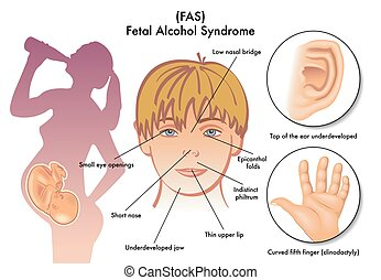 Fetal Alcohol Syndrome - medical illustration of the...