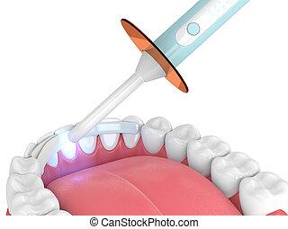 fibra, render, mandíbula, dental, polymerization, lámpara, ...