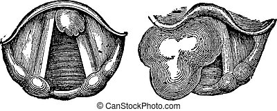 Fibroids of the Larynx, vintage engraved illustration. Usual Medicine Dictionary by Dr Labarthe - 1885