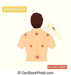 Fibromyalgia disease. Red light therapy - Fibromyalgia...