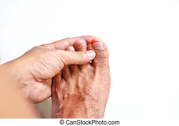 Toenail Fungus With A Nail Falling Off? This is the SECRET ...