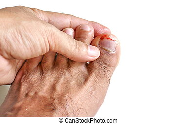 Broken toe from crush injury - Stock Image C009/0115 ...