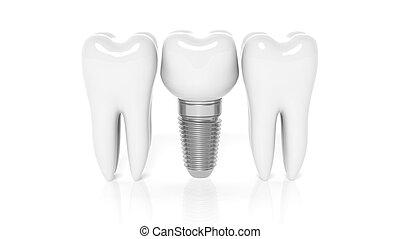 fila, de, dentes, com, dental, implante, isolado, branco,...