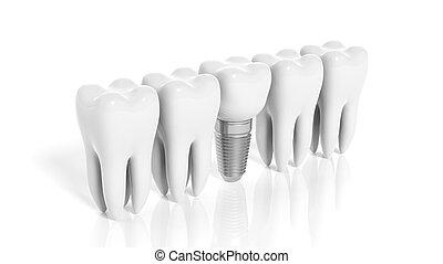 fila, de, dentes, e, dental, implante, isolado, branco,...