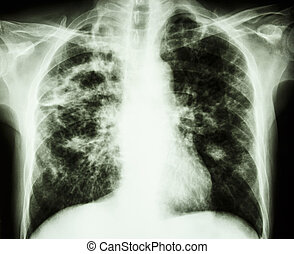 film chest x-ray show cavity at right lung, fibrosis & interstitial & patchy infiltrate at both lung due to Mycobacterium tuberculosis infection (Pulmonary Tuberculosis)