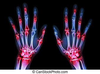 film x-ray both human's hands and arthritis at multiple...