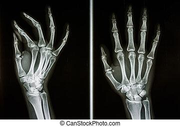 bones of human hands