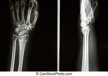 Film X-ray show fracture distal radius (Colles' fracture) (Wrist)