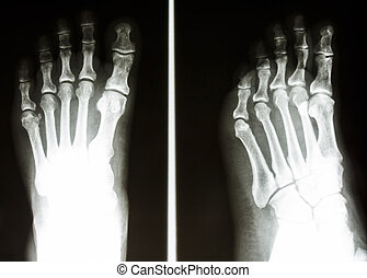 film X-ray show normal bone of human's foot