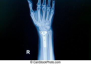 Film x-ray wrist fracture : show fracture distal radius...