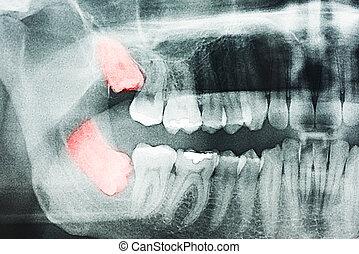 filozofia, ból, rentgenowski, zęby