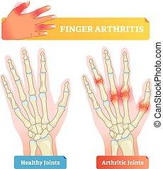 Finger arthritis vector illustration. Healthy and disease...