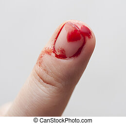 Finger prick