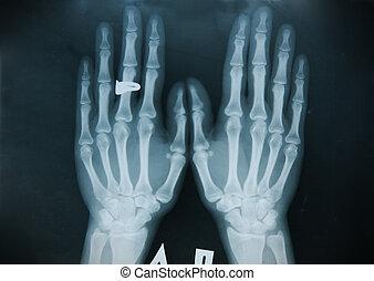 (finger), radiografía, mano