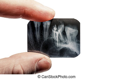 fingers are holding the x-ray of teeth isolated on background