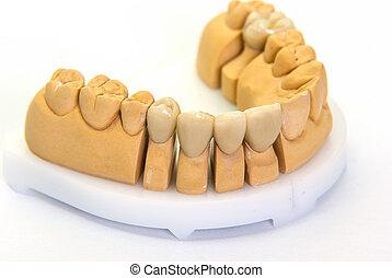 Finished porcelain teeth on model