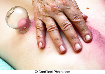 fire cupping treatment to cup sb therapy woman - to cup sb,...