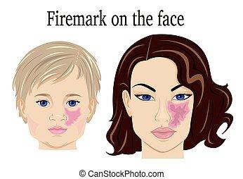 firemark, 上, the, 臉