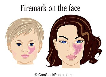 Firemark on the face - Port-wine stain on the face of the...