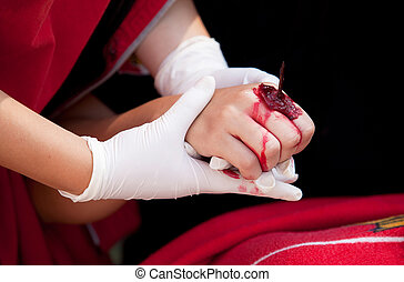 Injury on girl's arm