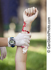 first aid training - Serious arm injury