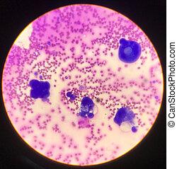fluido, corpo, smear., atipico, cellule
