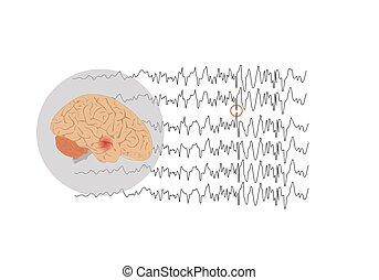 Focal seizure originating from temporal lobe - Vector ...