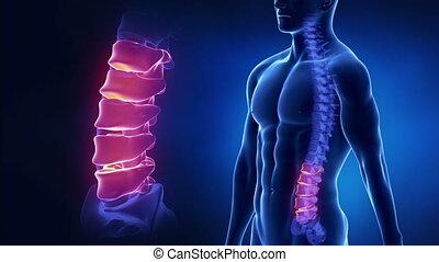 Focused on spine LUMBAR region in l