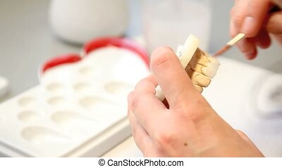 fogászati, fogász, kifogásol, implants