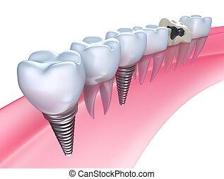 fogászati, implants, alatt, a, gumi